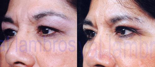 Val Lambros, M D , F A C S  | Newport Beach, CA, Cosmetic
